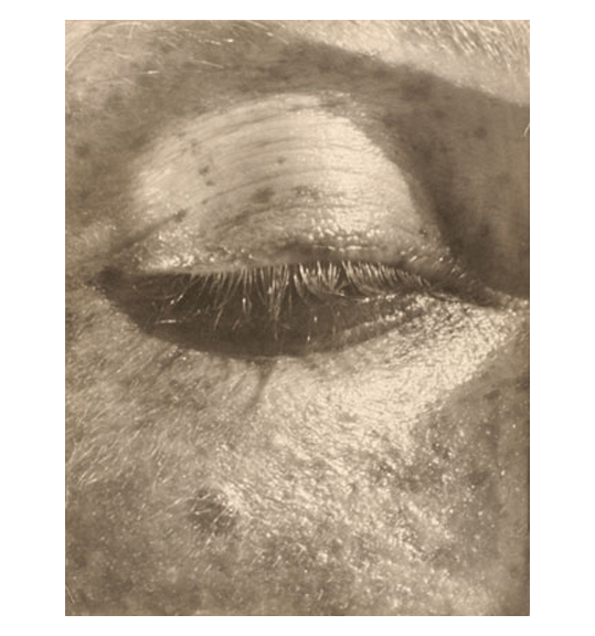 A brown toned close-up photograph of a person's closed eye. The subject also has freckles.